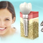 Самые популярные методы  восстановления целостности  зубного ряда